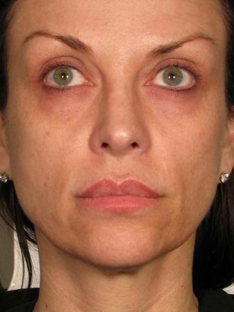 Ultherapy® - Face: Patient 23 - After Image 1