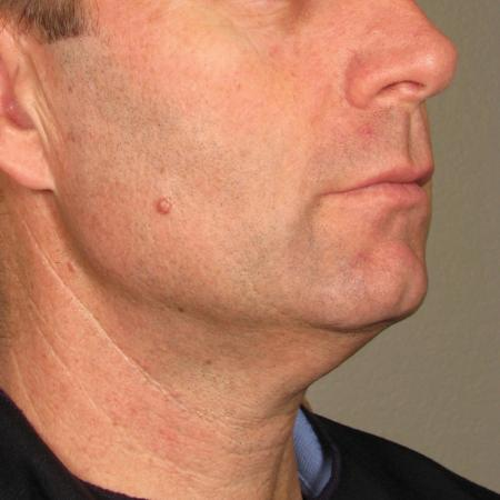 Ultherapy® - Chin: Patient 22 - After Image