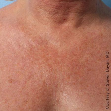 Ultherapy® - Décolletage: Patient 7 - After Image
