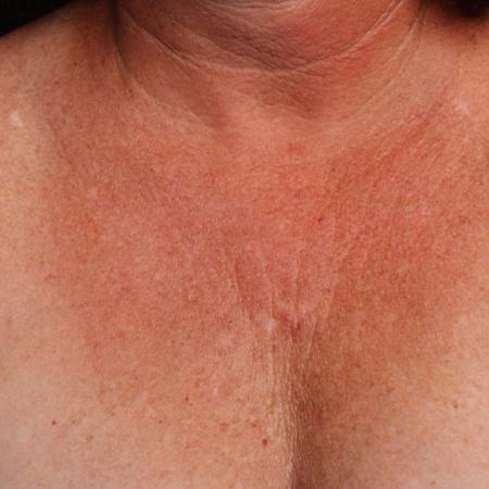 Ultherapy® - Décolletage: Patient 11 - Before Image 1