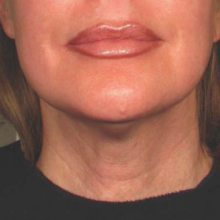 Ultherapy® - Chin: Patient 25 - After Image