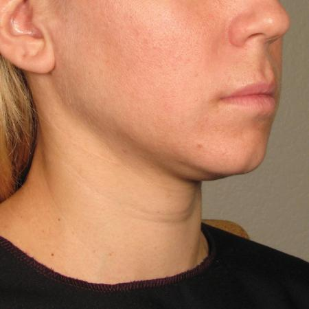 Ultherapy® - Chin: Patient 23 - Before Image