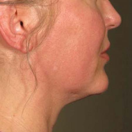 Ultherapy® - Chin: Patient 18 - After Image