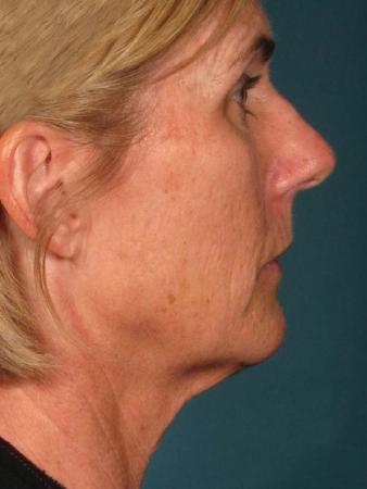 Ultherapy® - Face: Patient 15 - After 1