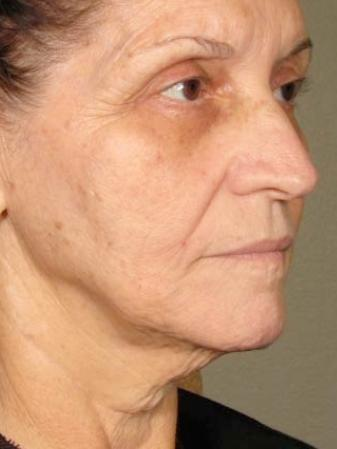 Ultherapy® - Face: Patient 1 - After Image
