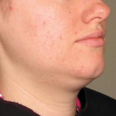 Ultherapy® - Chin: Patient 16 - Before Image 1