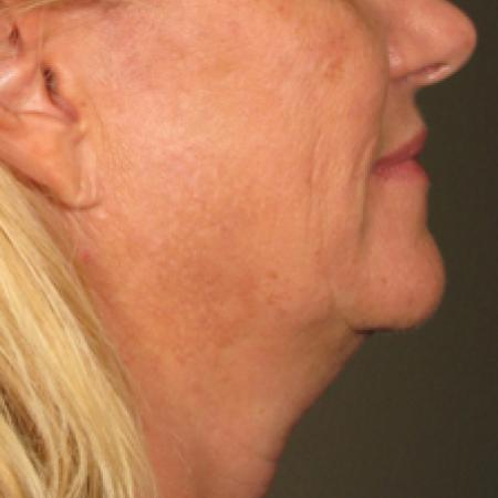 Ultherapy® - Chin: Patient 12 - Before Image