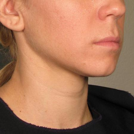 Ultherapy® - Chin: Patient 23 - After Image
