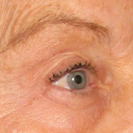 Ultherapy® - Brow: Patient 1 - After Image