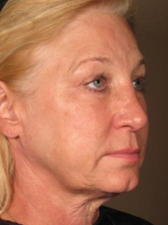 Ultherapy® - Face: Patient 4 - Before Image