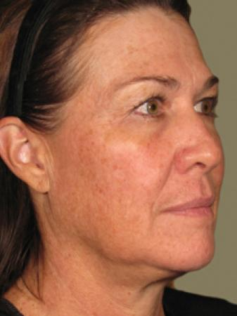 Ultherapy® - Face: Patient 2 - After Image