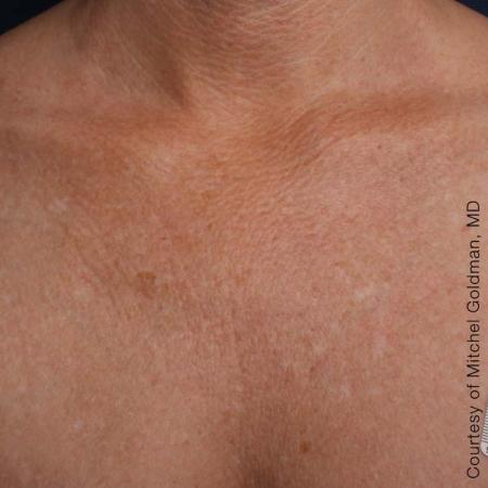 Ultherapy® - Décolletage: Patient 18 - After Image 1