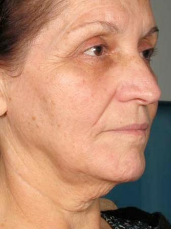 Ultherapy® - Face: Patient 1 - After Image 1