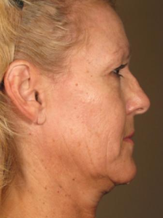 Ultherapy® - Face: Patient 5 - Before Image
