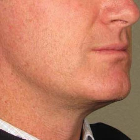 Ultherapy® - Chin: Patient 19 - After Image