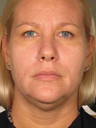 Ultherapy® - Face: Patient 16 - Before 1