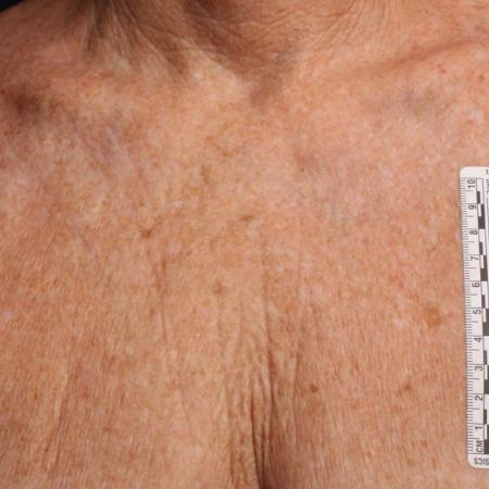 Ultherapy® - Décolletage: Patient 15 - Before Image 1