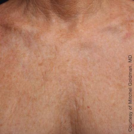 Ultherapy® - Décolletage: Patient 15 - After Image 1
