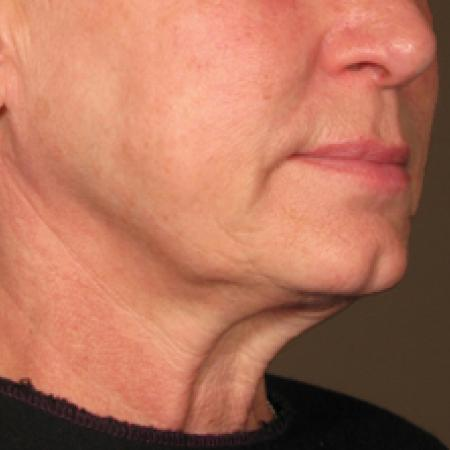 Ultherapy® - Chin: Patient 5 - Before Image