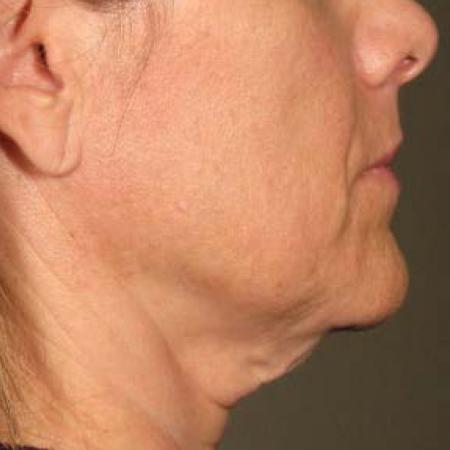 Ultherapy® - Chin: Patient 31 - Before Image 1