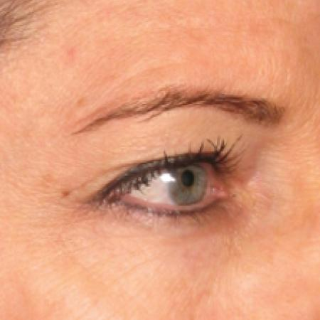 Ultherapy® - Brow: Patient 3 - Before Image