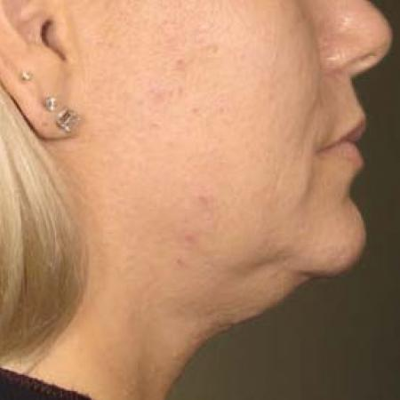 Ultherapy® - Chin: Patient 30 - Before Image