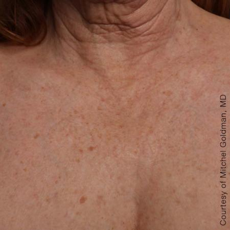Ultherapy® - Décolletage: Patient 17 - After 1
