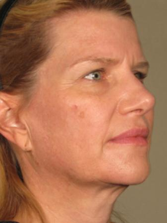 Ultherapy® - Face: Patient 3 - After Image