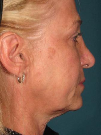 Ultherapy® - Face: Patient 14 - Before Image 1