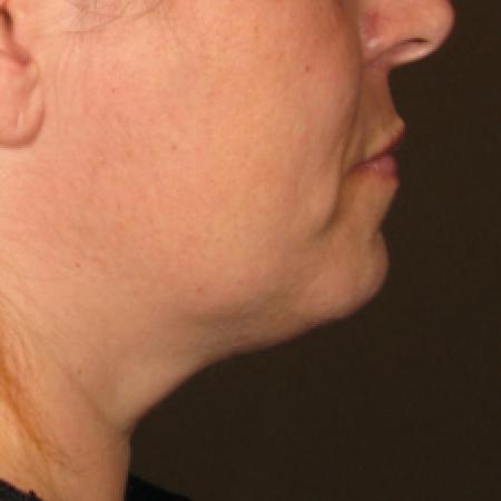 Ultherapy® - Chin: Patient 8 - After Image