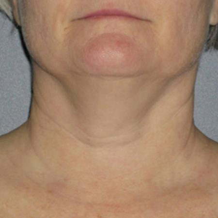 Ultherapy® - Neck: Patient 1 - Before Image