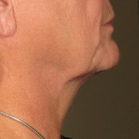 Ultherapy® - Chin: Patient 13 - After Image 1