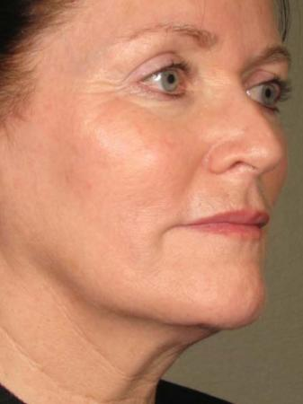 Ultherapy® - Face: Patient 22 - After 1