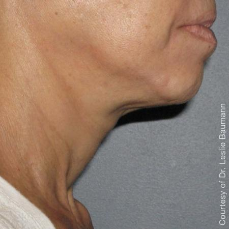 Ultherapy® - Neck: Patient 8 - After Image 1
