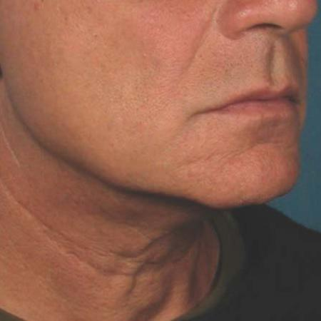 Ultherapy® - Chin: Patient 40 - After Image 1