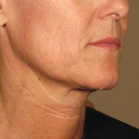 Ultherapy® - Chin: Patient 3 - After Image