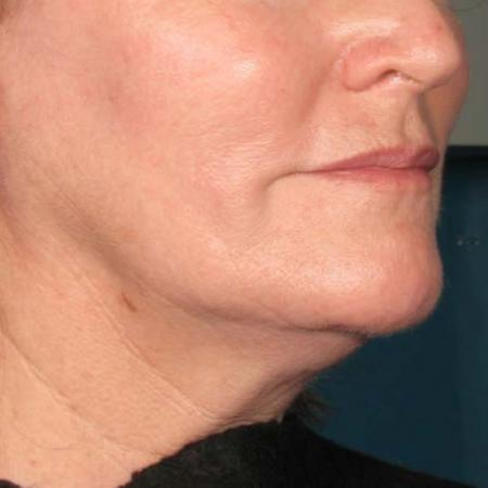 Ultherapy® - Chin: Patient 34 - Before 1