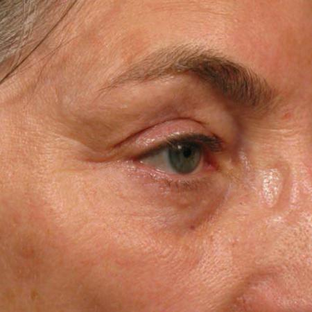 Ultherapy® - Brow: Patient 6 - After Image