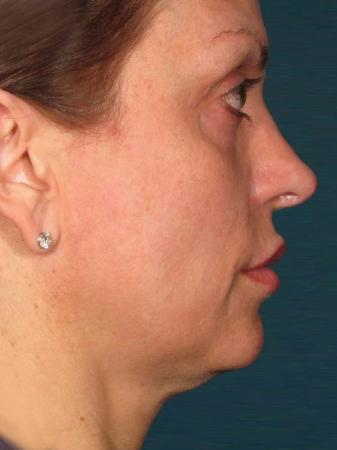 Ultherapy® - Face: Patient 24 - Before Image 1