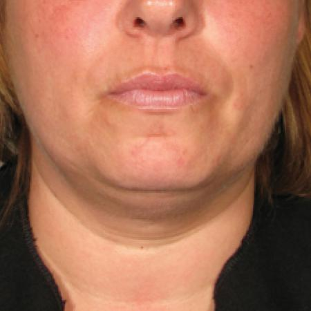 Ultherapy® - Chin: Patient 7 - Before Image