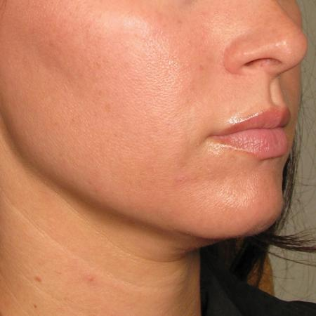 Ultherapy® - Chin: Patient 26 - After Image