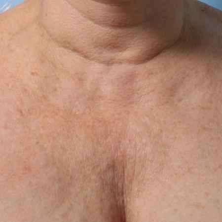 Ultherapy® - Décolletage: Patient 8 - Before Image
