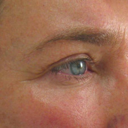 Ultherapy® - Brow: Patient 8 - Before Image