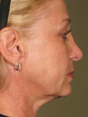 Ultherapy® - Face: Patient 14 - After Image 1