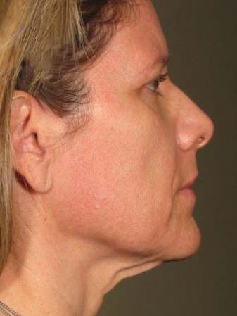 Ultherapy® - Face: Patient 19 - After Image 1