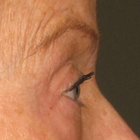 Ultherapy® - Brow: Patient 2 - After Image