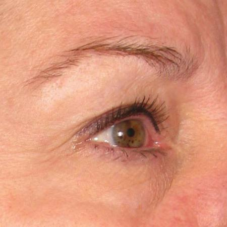 Ultherapy® - Brow: Patient 10 - Before Image