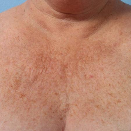 Ultherapy® - Décolletage: Patient 5 - Before Image
