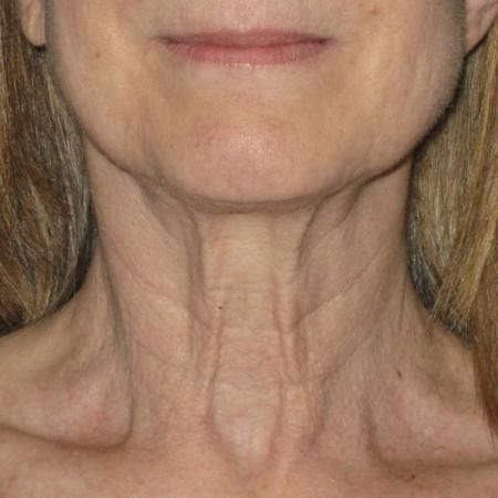 Ultherapy® - Neck: Patient 10 - Before Image