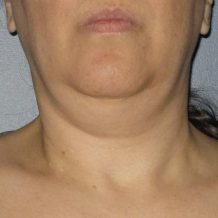 Ultherapy® - Neck: Patient 5 - Before Image